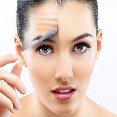 Anti Wrinkle - Botox (Page)-min